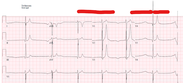 Dr  Smith's ECG Blog