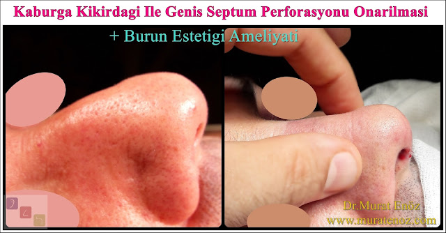 Erkek burun estetiği - Burun estetiği ameliyatı - Erkeklerde burun estetiği - Nose Job Surgery for Men - Male Rhinoplasty - Men's Rhinoplasty - Nose Reshaping for Men - Mens Rhinoplasty - Nose Job Rhinoplasty for Men - Best Rhinoplasty For Men Istanbul - Nose Aesthetic for Men - Male Nose Operation - Male Rhinoplasty Surgery in Istanbul - Male Rhinoplasty Surgery in Turkey - Male Nose Aesthetic Surgery - Rhinoplasty In Mens