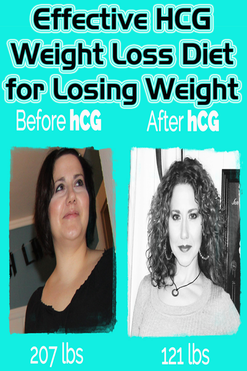 Effective HCG Weight Loss Diet for Losing Weight