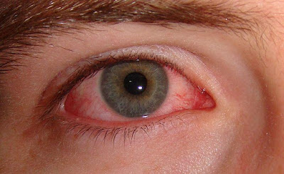 Cara mengobati sakit mata merah dengan cepat versi wikihow