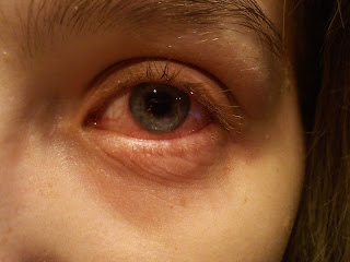 A eye with conjunctivitis, eyes disease , eyes problems