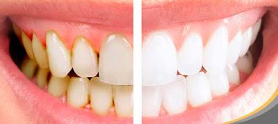 Agua oxigenada blanquea dientes