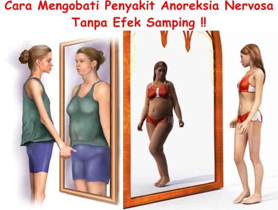 Obat Tradisional Anoreksia Nervosa