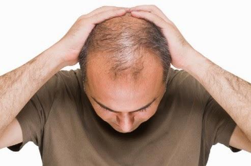 Lifebuoy Shampoo Atasi Masalah Rambut Anda