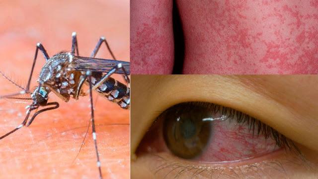 epidemia de zika en ecuador