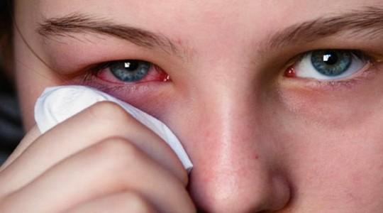resep penyakit mata paling ampuh