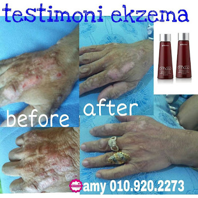 Image result for ekzema