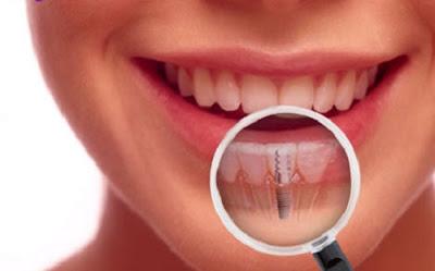 những lưu ý trước khi trồng răng implant -6