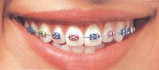 Behel,LHDentalCareMedan,Orthodontic