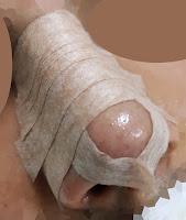 Burun estetiği ameliyatı komplikasyonları - Rinoplasti ameliyatının komplikasyonları - Estetik burun ameliyatı komplikasyonları - Burun estetiği sonrasında görülebilecek sorunlar - Rinoplastiden sonra görülebilecek sorunlar - Burun estetiğinin riskleri
