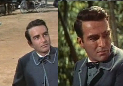 Monty Clift Car Accident Before And After