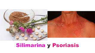 Silimarina y Psoriasis