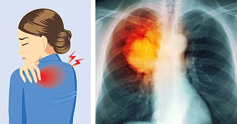 Warning Signs Of Lung Cancer That Every Woman Needs To Know