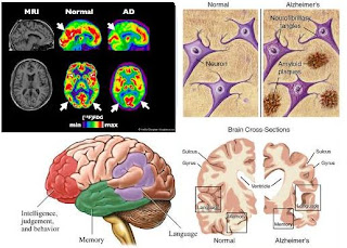 Anatomi otak penderita alzheimer, Gejala awal dan pencegahan alzheimer