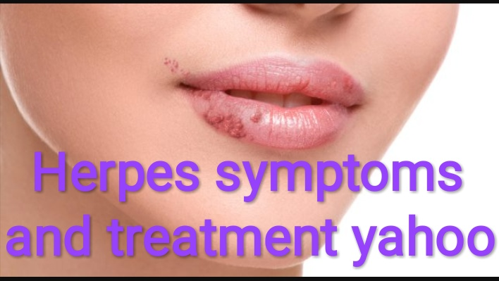 Healthcare & Health solution: Herpes symptoms and treatment