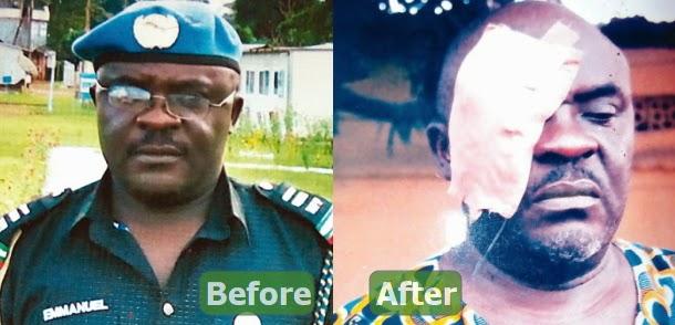 nigeria police asp blind emmanuel mbilla