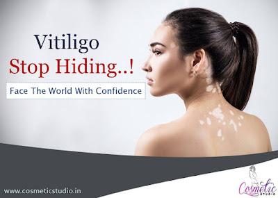 https://www.cosmeticstudio.in/vitiligo