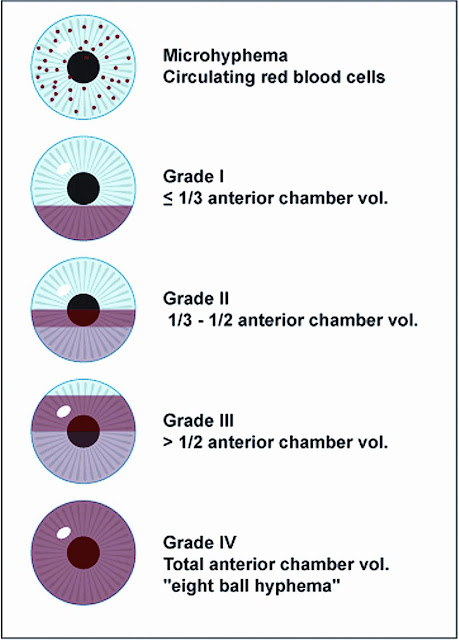 Grading of Hyphema, Blood in Eye
