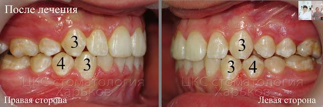 Ортогнатический прикус у пациента после лечения брекетами с удалением зуба