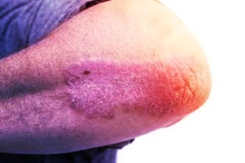 Psoriasis nerviosa fotos