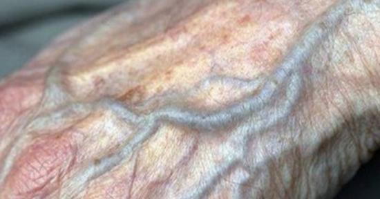 La ampliación varicosa en los pies y la consecuencia