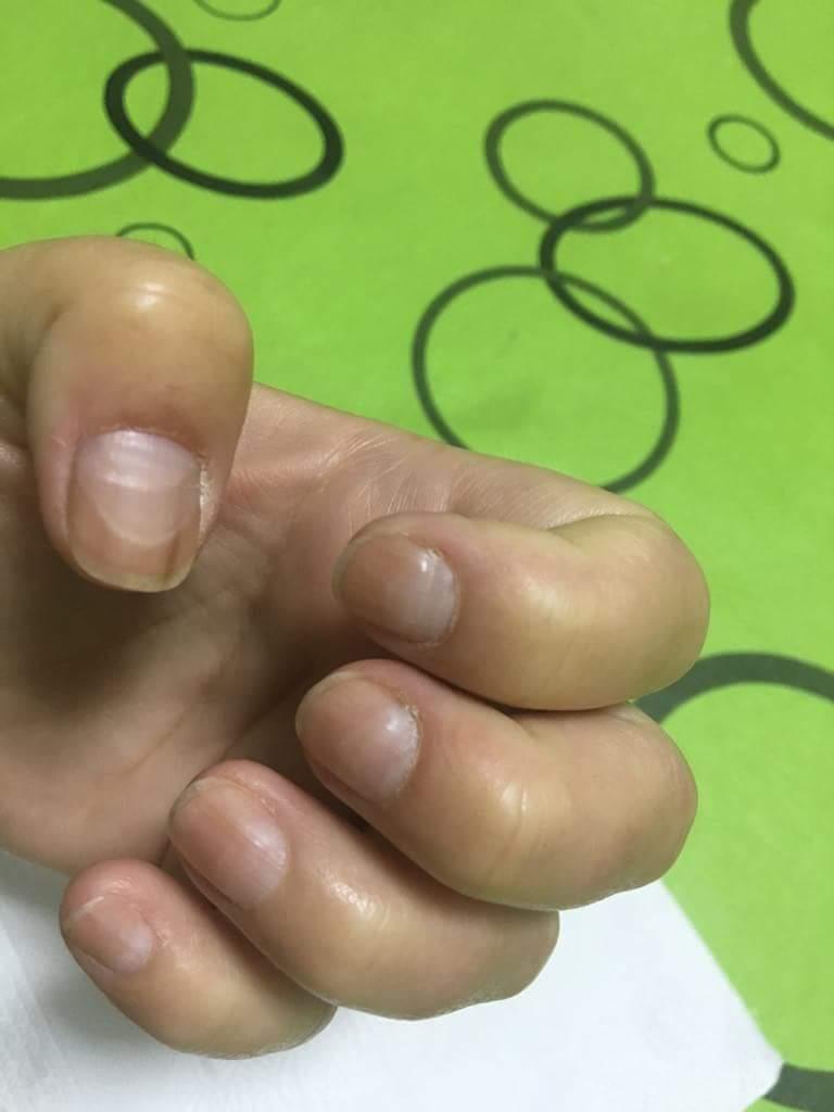 Cuaderno del Cáncer: El lenguaje de las uñas