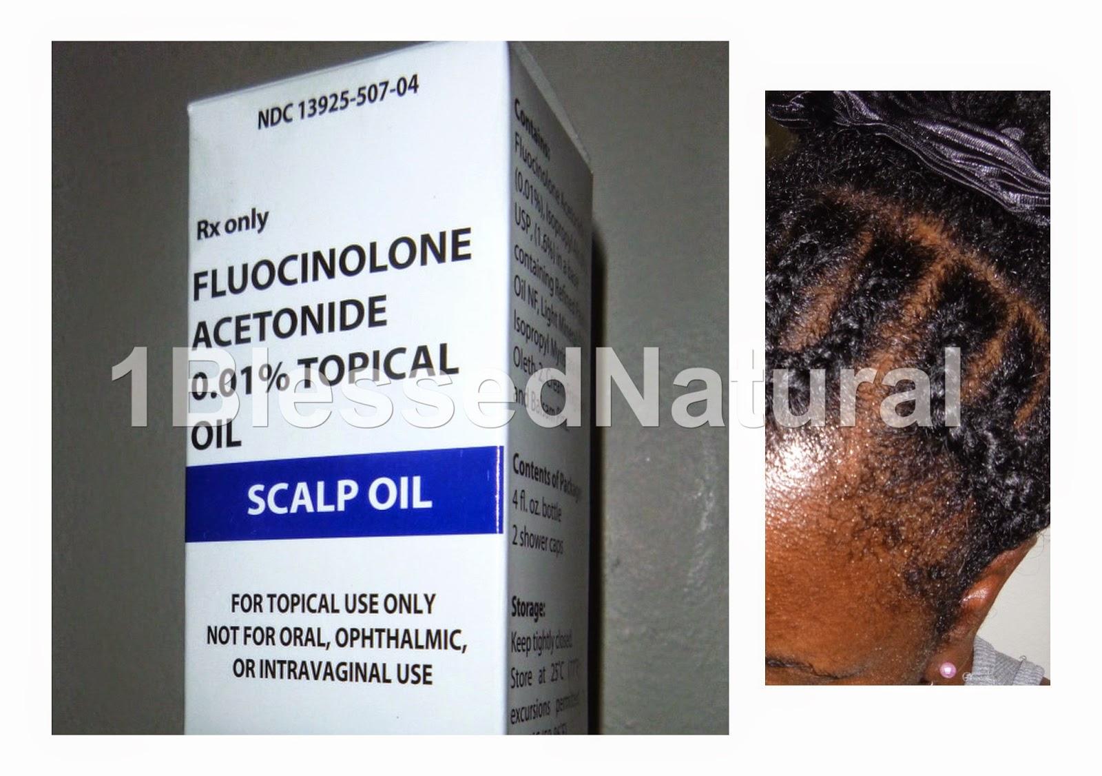 Fluocinonide Topical Solution Scalp