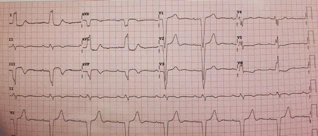 Bradycardia And Hypotension In Stemi David Simchi Levi