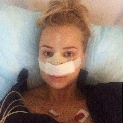 operacja nosa, korekta nosa, operacja nosa warszawa, marcin jadczak, plastyka nosa