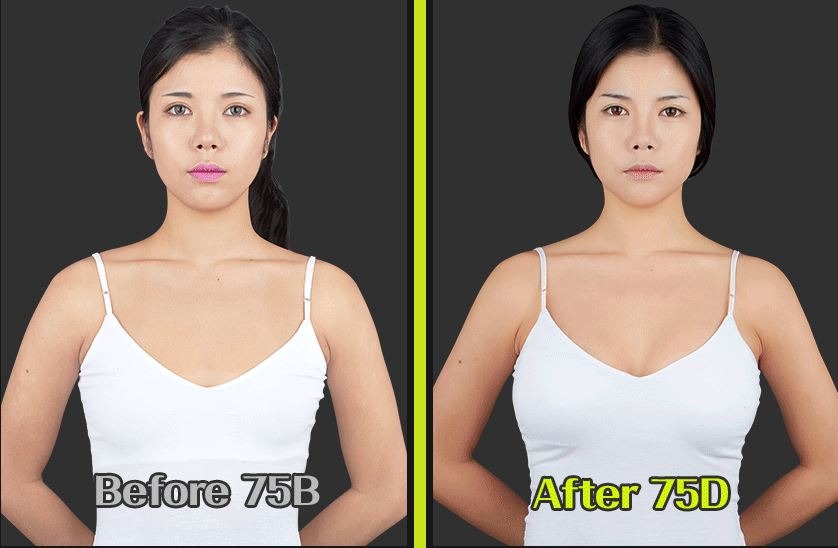 breast aumentation before and