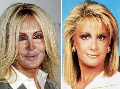 Muka selepas dan sebelum pembedahan plastik