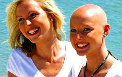 Cáncer mujeres pérdida cabello