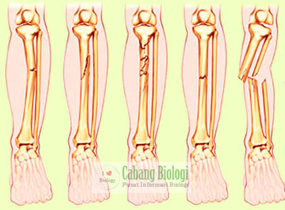 Patah Tulang (Fraktura)