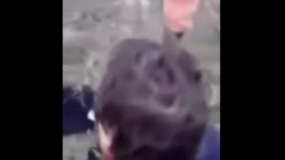 رجل يغرس سكينا بطول 8 بوصات في رأسه لعدم قدرته على التنفس من الأنف .. فيديو صادم
