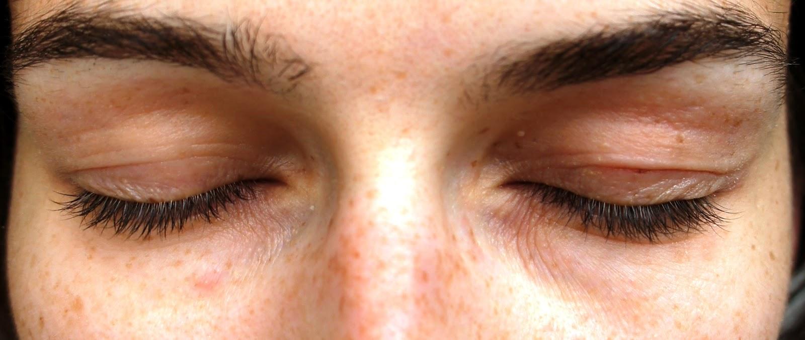 eczema eyelids - photo #6