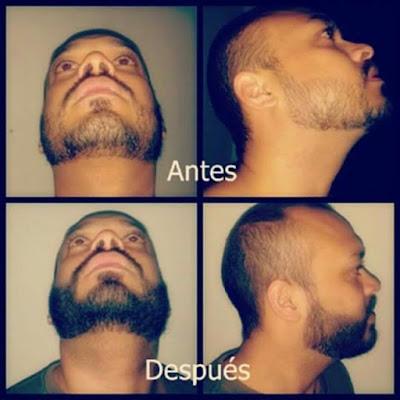 capsulas vitamina e barba