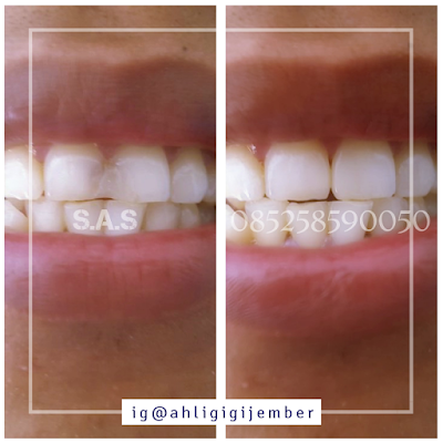 Solusi memperbaiki restorasi gigi depan berlubang hitam keropos
