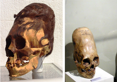 Paracas skulls of Red-Hair Giants