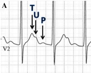 How do we measure the QT segment when there are prominent U waves