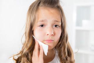 Obat Sakit Gigi Anak Alami Saat Tumbuh Gigi Yang Paling Ampuh