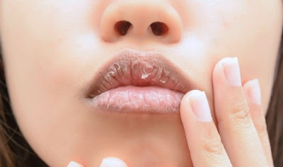 Why Are Your Lips So Dry, And How To Make Your Lips Soft