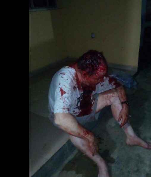Badoo member allegedly attacks expatriate in Lagos [VIDEO/PHOTOS]