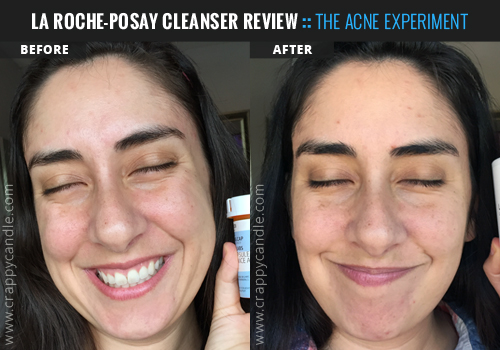 La Roche-Posay Cleanser Before & After :: The Acne Experiment