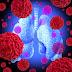 Καρκίνος του πνεύμονα. Τι τον προκαλεί;