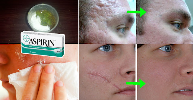 This 100% Natural Recipe Will Remove Scars From Your Face And Body
