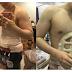 Heboh operasi perut six pack, 8 potret prosesnya bikin ngilu