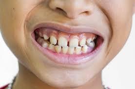 معلومات عن الاسنان