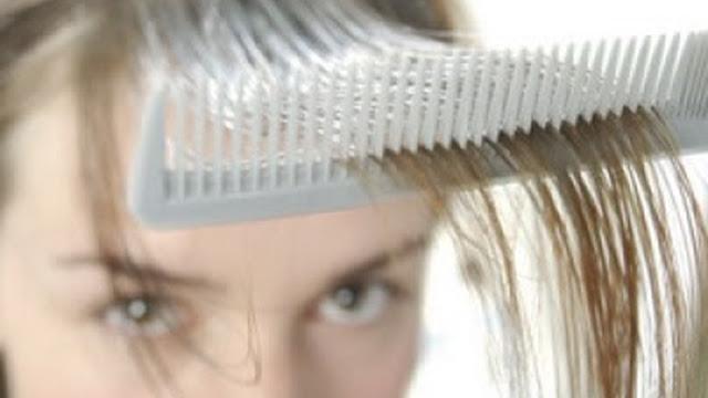 Mujer con problemas de caída del cabello.