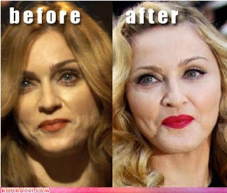 Madonna Plastic Surgery Before And After Cheek And