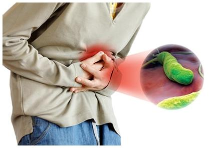 Cara Mengobati Infeksi Lambung Terpercaya